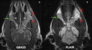 IRM image 1