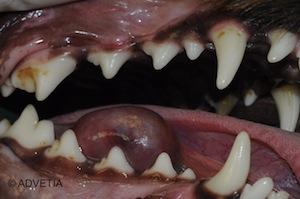sialocèle sous linguale