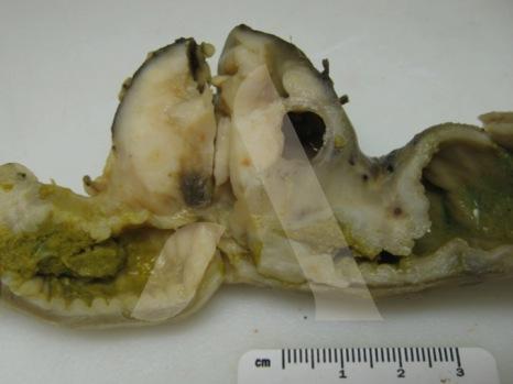 Pièce d'exérèse de la masse colique. L'analyse histologique a révélé une fibroplasie sclérosante éosinophilique féline colique (maladie inflammatoire non néoplasique).