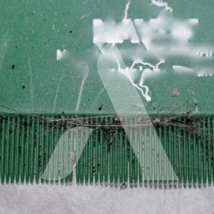Très nombreuses déjections de puces récoltées dans le pelage d'un chat par simple peignage