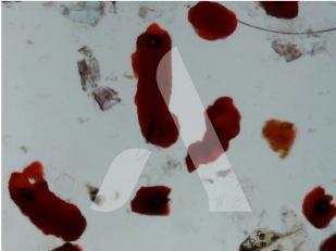 Déjections de puces vues au microscope, X50
