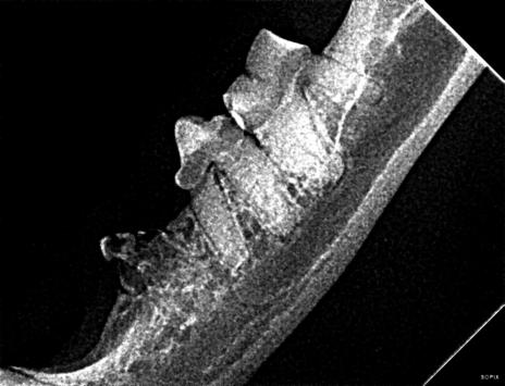 Vue radiographique latérale de l'arcade dentaire mandibulaire gauche. La 3e prémolaire présente une résorption en phase terminale (stade TR4a vers TR5) avec exposition pulpaire.