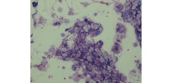 Neutrophiles et kératinocytes, signant l'existence d'une infection cutanée (X400, coloration RAL 555)