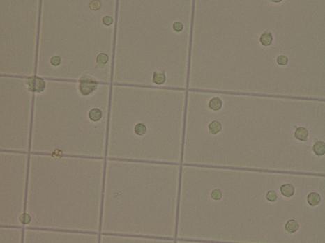 Examen direct de liquide cérébrospinal en cellules de Malassez. Présence de nombreux leucocytes